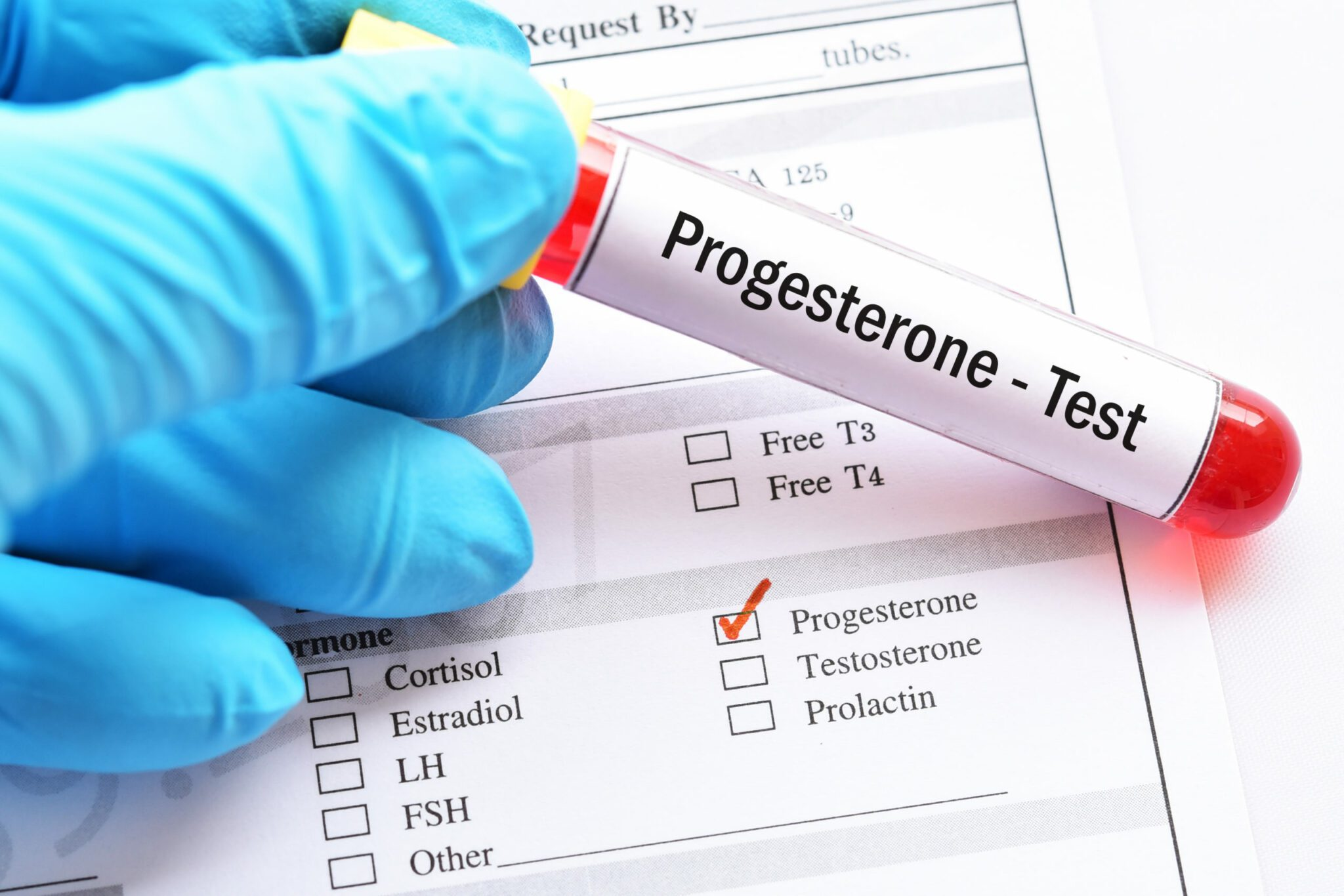 Progesterone Levels are too High